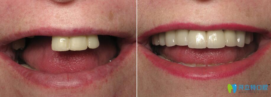 松桃鹏博口腔微创种植牙前后对比效果