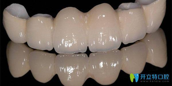非金属类假牙