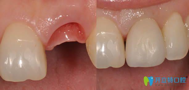 种植牙步骤完成后的前后对比图