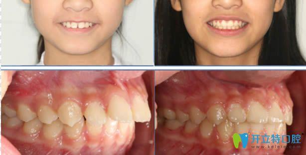 瞅瞅牙齿畸形的顾客在丽江锦美口腔做的牙齿矫正怎么样吧