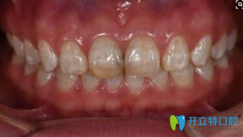 轻度氟斑牙图片