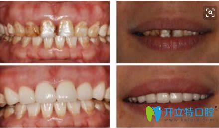 重度氟斑牙选择美容冠后的对比效果图