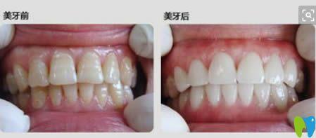 轻度氟斑牙选择冷光美白后的对比效果