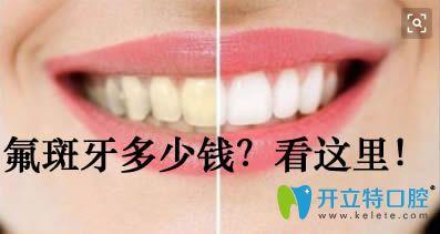 治疗氟斑牙的价格需要多少钱