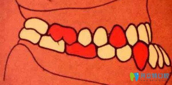 安氏三类错颌  近中错颌