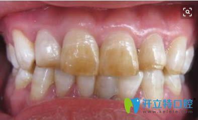 中度氟斑牙图片