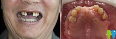 种植牙真实案例见证重庆齐美口腔到底好不好?
