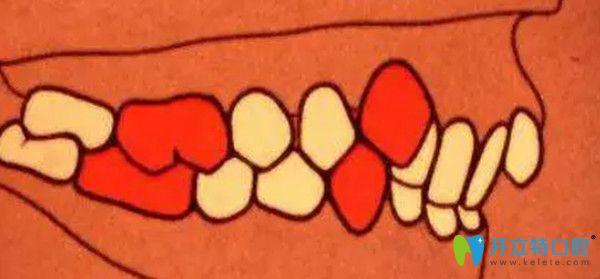 安氏二类错颌  远中错颌  第2分类