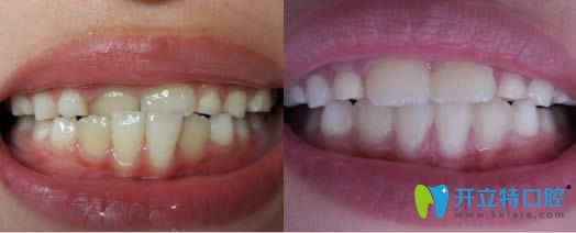 杭州全好口腔牙齿矫正前后对比图