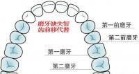 牙医说出了智齿矫正后代替磨牙有没有危害