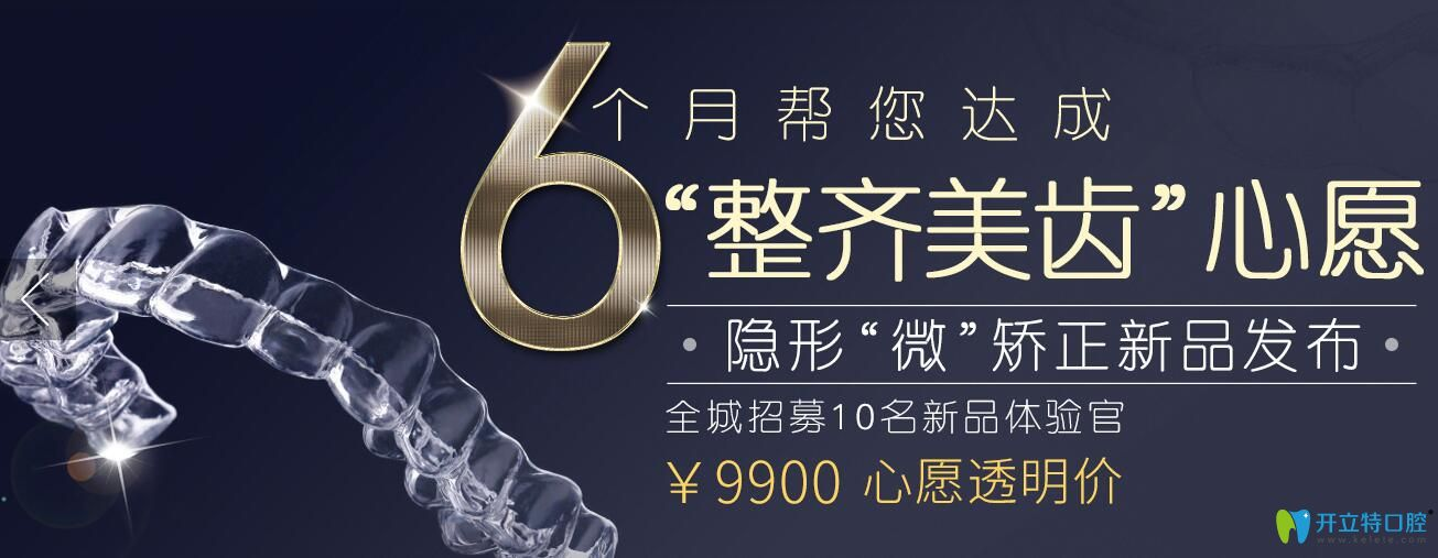 上海英博口腔快速矫正牙齿技术—矫正仅需6个月,招募体验官