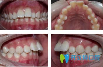 深覆盖牙齿矫正案例—由杭州全好口腔提供