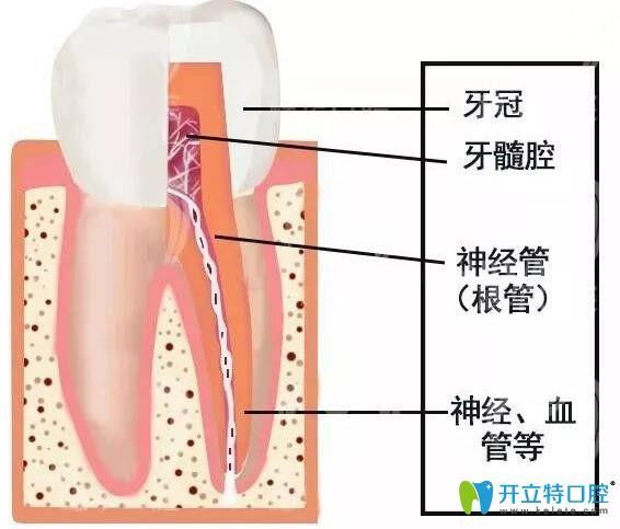 牙神经坏死怎么治疗及治疗价格,你知多少?