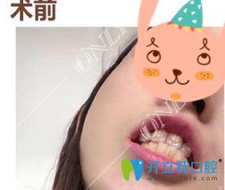 我在广州壹加壹矫正前牙反颌120天 牙齿整齐了下巴也出来了
