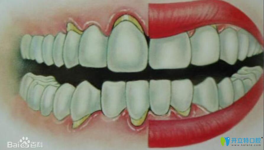 牙槽骨萎缩假牙挂不住,请问牙槽骨萎缩还能恢复吗?