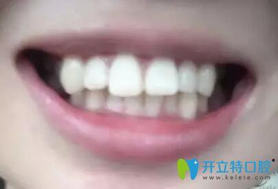 在重庆团圆口腔金属托槽牙齿矫正1年,看我的龅牙变化明显吗