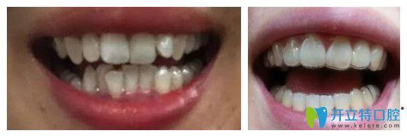 牙齿不齐达芬奇隐形矫正1到12个月效果