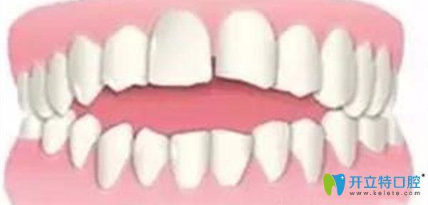 引发牙齿开合的原因及治疗方法