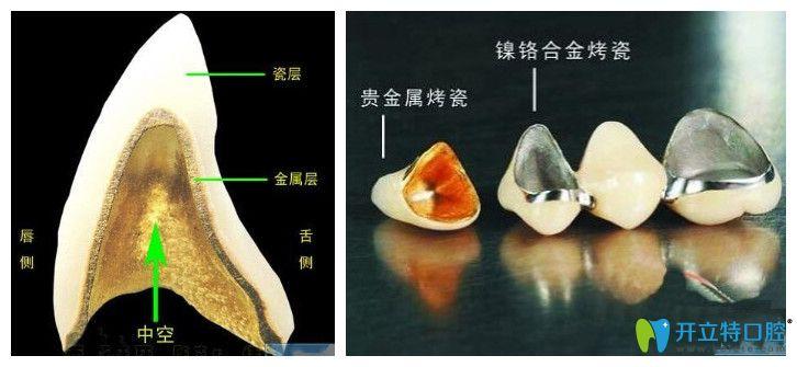 烤瓷牙图片