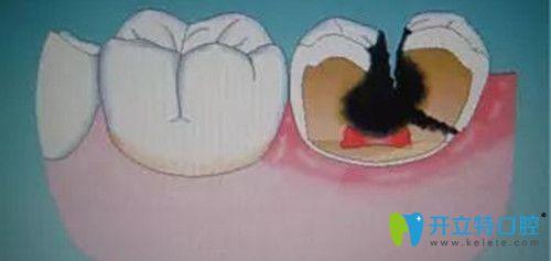 牙根部发黑是什么原因造成的