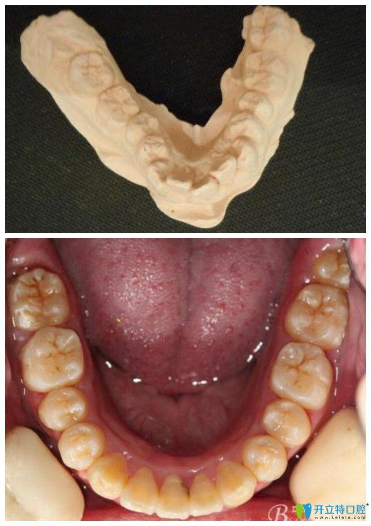 牙弓狭窄怎么矫正