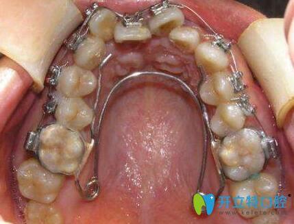 什么是牙弓狭窄