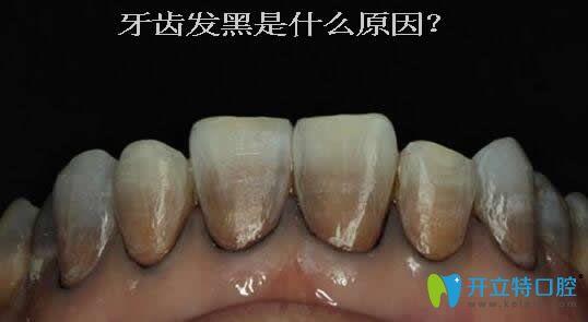 一次性告诉你:牙齿发黑是什么原因?可能与蛀牙无关