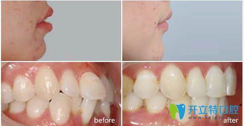 衡阳美莱牙齿矫正效果前后对比图
