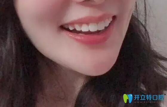 给大家看下我上牙外翻在南昌德韩口腔做矫正的效果如何