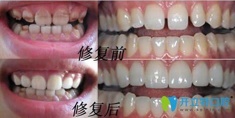 衡阳美莱生态美牙冠修复效果前后对比图