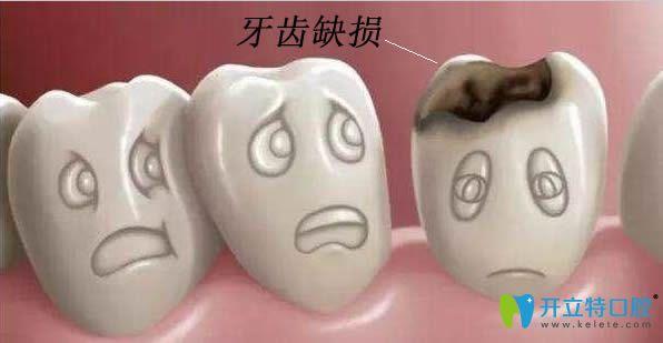 牙齿缺损修复方法哪种比较好?乐山英美口腔给出答案