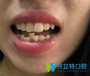 牙齿不齐,我选择在乐山英美口腔做二氧化锆全瓷牙来修复