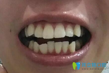 在曹县雅美口腔做金属托槽牙齿矫正300天后,我重获自信