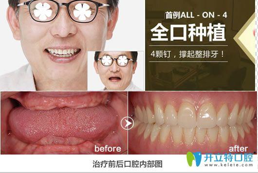 深圳格伦菲尔allon4全口种植牙案例图