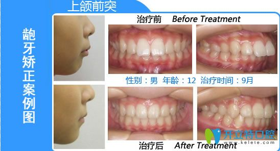 深圳格伦菲尔青少年龅牙矫正前后对比效果图