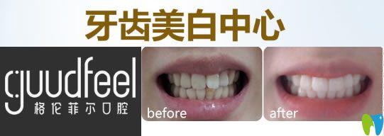 深圳格伦菲尔牙齿美白前后对比效果