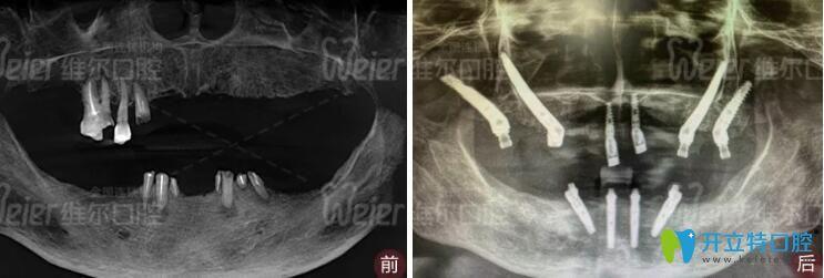 北京维尔口腔穿颧穿翼种植前后对比照片
