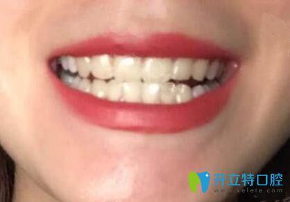 想要摆脱黄牙,我选择在江门梦想口腔做了冷光美白牙齿