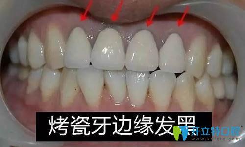 听厦门康尔口腔医生分析烤瓷牙套边缘发黑是否要重做?
