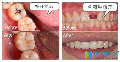 湛江致美口腔种植牙补牙案例