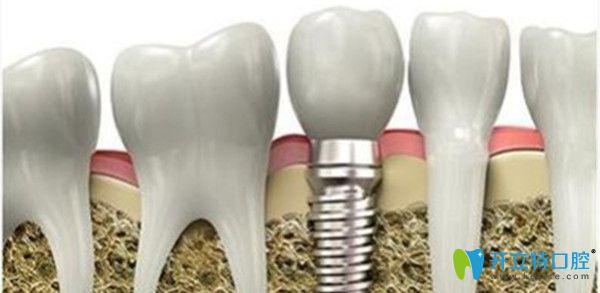 种植牙技术成熟吗?临沂银座牙客口腔为你解惑