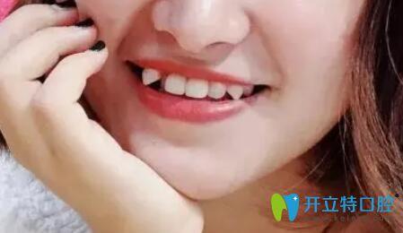 在济南品洁口腔矫正虎牙83天,晒我的虎牙戴牙套变化图