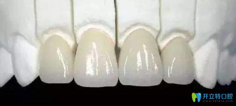 门牙做了烤瓷牙还能矫正吗?听济南品洁口腔医生解析