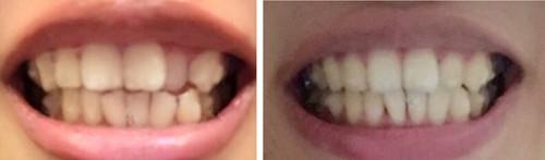 隐适美效果怎么样?晒在贵阳德韩口腔戴牙套1-12月变化图
