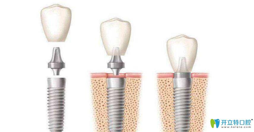种植牙牙冠能换吗?种植牙换个牙冠多少钱?