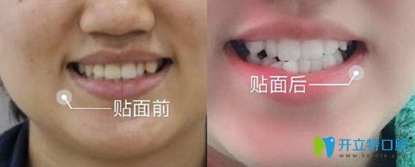 牙齿美容修复前后变化图