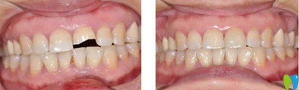 牙齿修复前后效果图