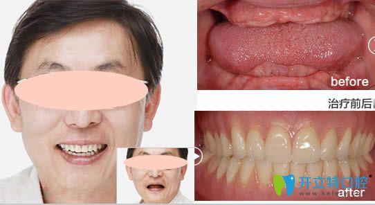 深圳格伦菲尔口腔全口种植牙前后效果对比图