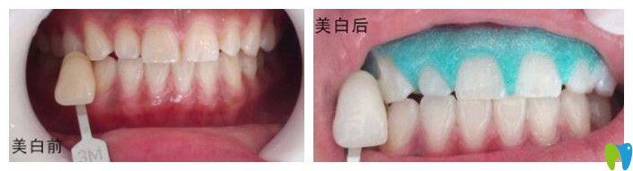 江门梦想口腔牙齿冷光美白案例