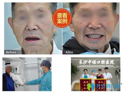 北京中诺口腔60岁老人全口牙种植前后对比效果图